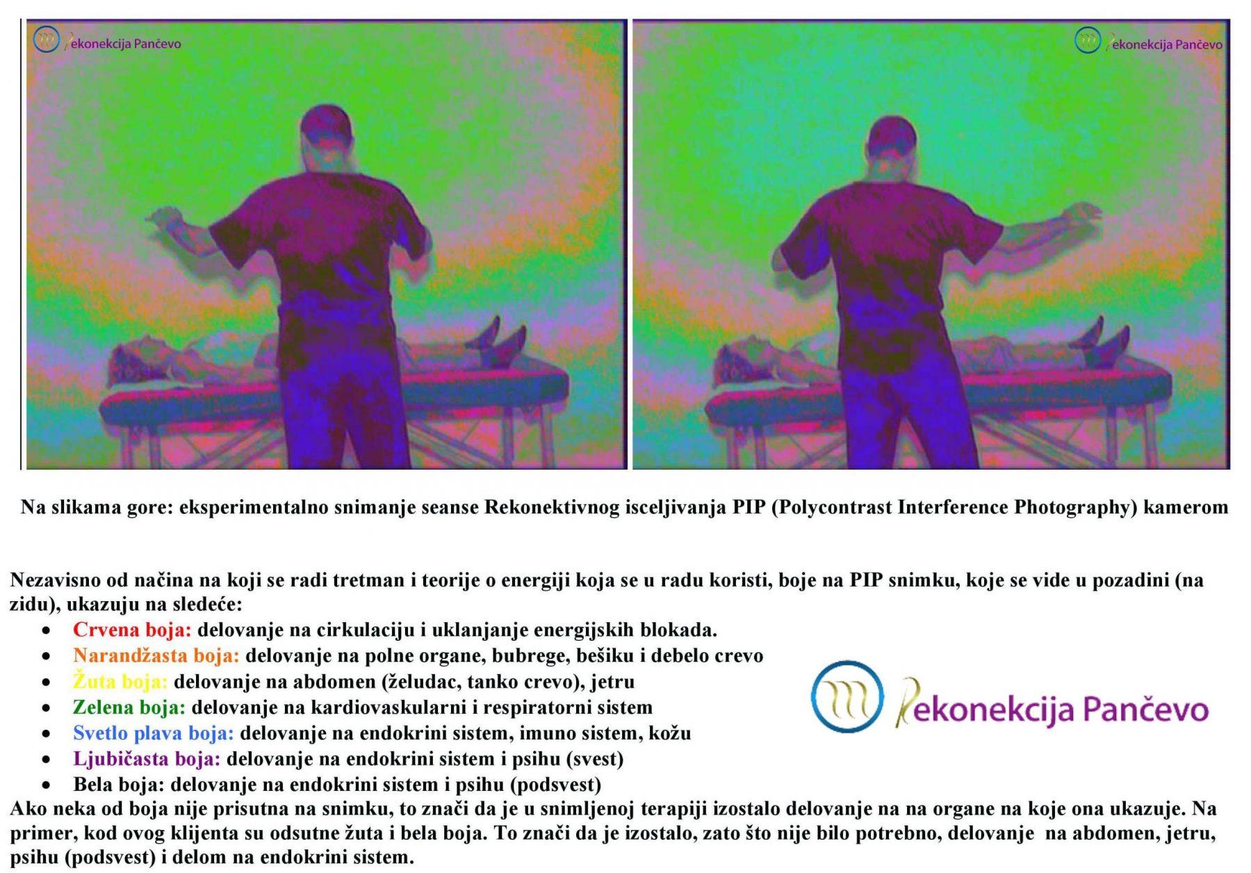 Seansa Rekonektivnog isceljivanja snimljena PIP kamerom (na slici: Miodrag Todorović, praktičar RI)